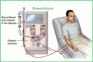 hemodialysis1